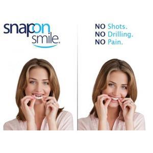 Виниры на зубы Snapon Smile