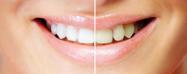 Система офисного отбеливания зубов